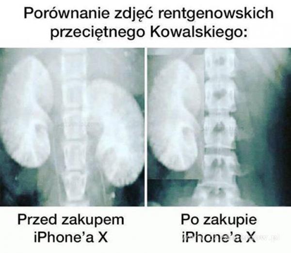 Porównanie zdjęć rentgenowskich przeciętnego Kowalskiego: Przed zakupem iPhone'a X Po zakupie iPhone'a X