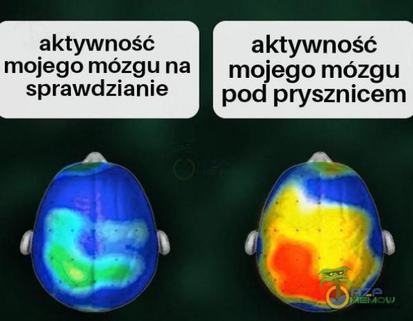 aktywność aktywność mojego mó zgl] na mojego mózgu sprawdzmme pod prysznicem
